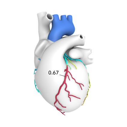 St. Thomas HeartFlow image.png